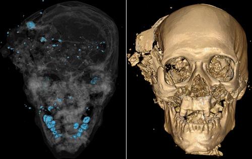 Neurotraumatologia forense – Roma 7 maggio 2005